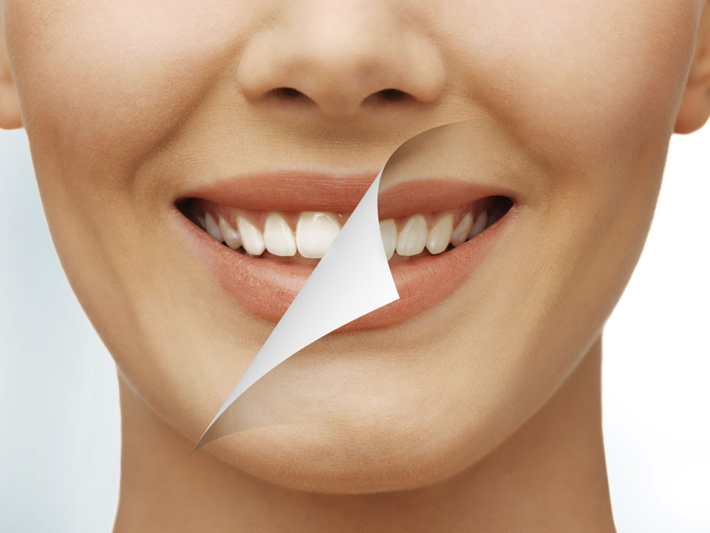 dental tooth whitening bleaching