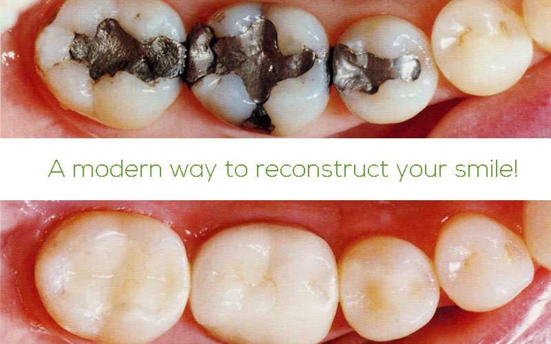 dental composite amalgam replacement